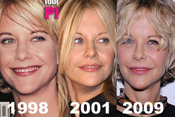 before and after surgery? (image hosted by zimbio.com)